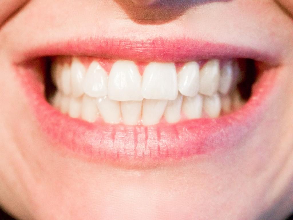 Implant dentaire Lyon : a quoi sert-il ?